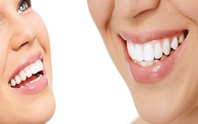 Five tips for preserving naturally white teeth
